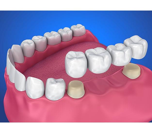 Bayside Dental Crowns and Dental Bridges