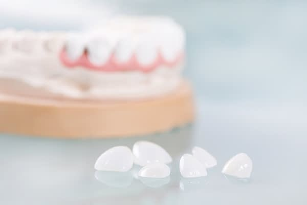 What Happens When You Get No Prep Veneers? [Quick Guide]