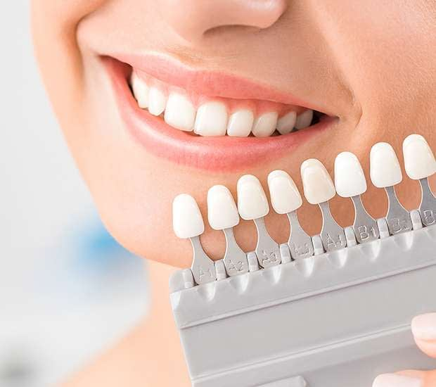 Bayside Dental Veneers and Dental Laminates