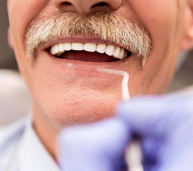 Bayside Adjusting to New Dentures