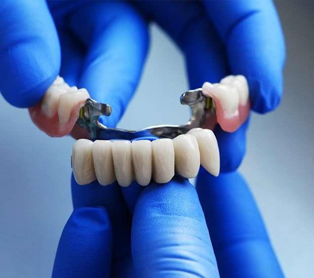 Bayside Dental Bridges