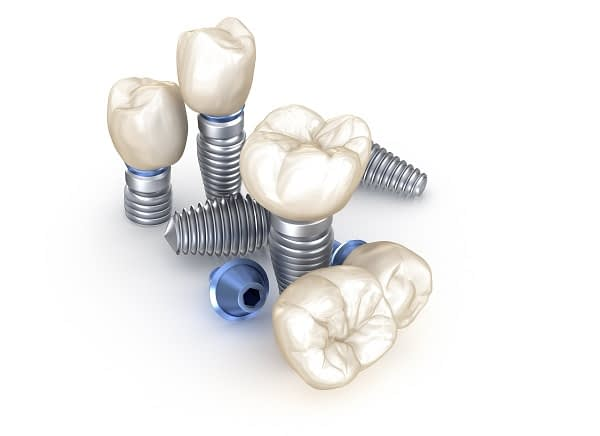 How Successful Is A Dental Implant Restoration?