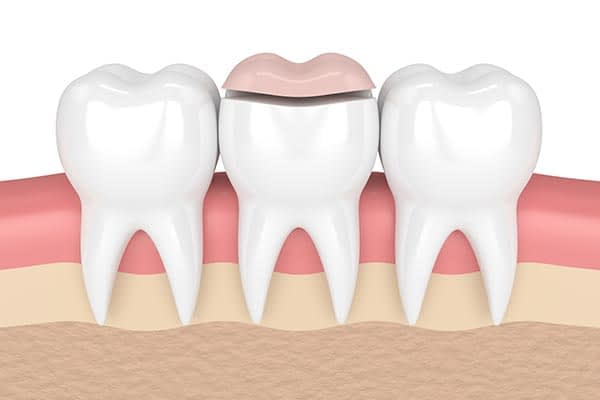 How A Cosmetic Dentist Can Place Inlays And Onlays