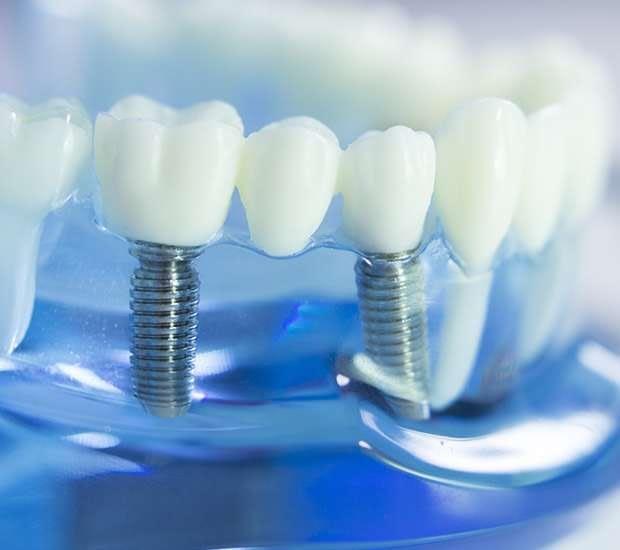 Bayside Dental Implants