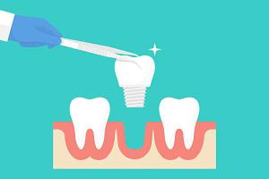 dental implants Bayside, NY