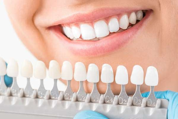 Ask A Cosmetic Dentist: What Are Veneers