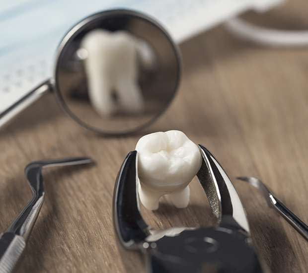 Bayside When Is a Tooth Extraction Necessary