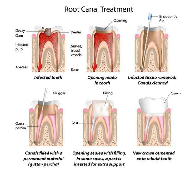 Bayside Root Canal Treatment