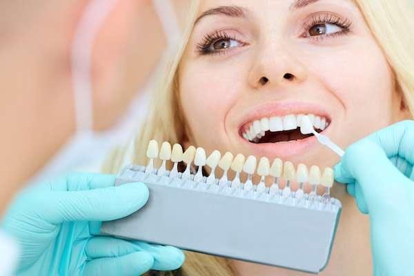 How A Cosmetic Dentist Places Dental Veneers