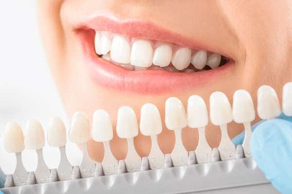 Caring For Veneers After A Cosmetic Dentist Treatment