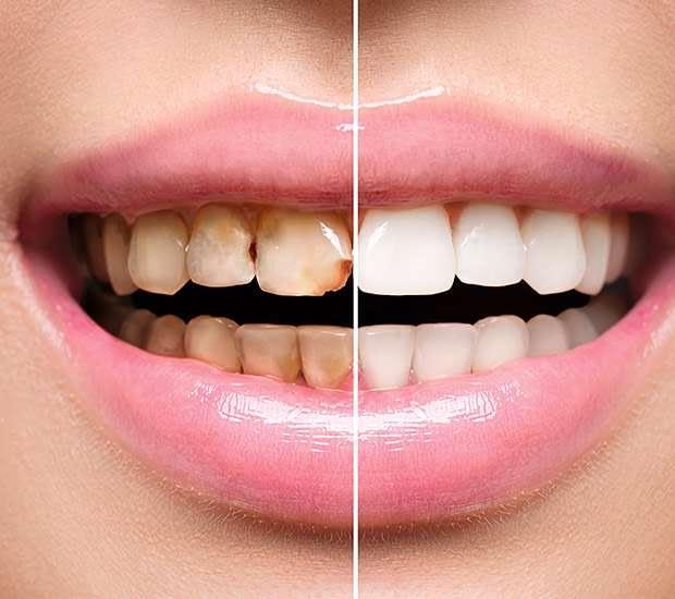 Bayside Dental Implant Restoration