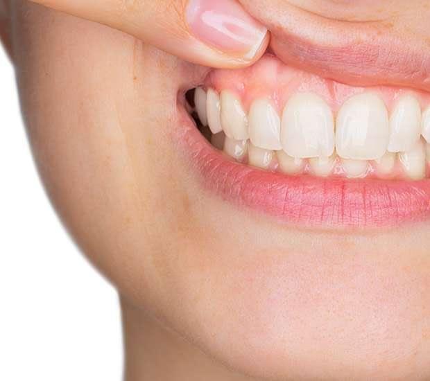 Bayside Gum Disease