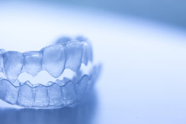 Why You Need To Keep Your Invisalign Trays Clean